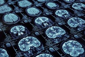 Pesquisa quer avaliar conhecimento de médicos generalistas sobre neurologia