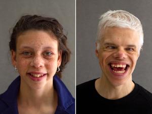 Síndrome de Williams é tema de mostra fotográfica na Associação Médica