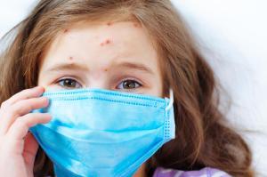 Médicos da rede privada, atenção: notifique qualquer caso suspeito de sarampo